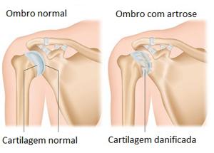 Artrose no ombro